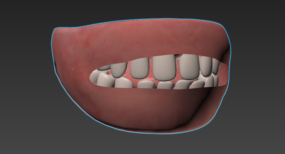 Rounded teeth